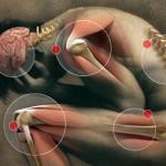 Dor Muscular Tardia (DMT) – Por Fernanda Colella
