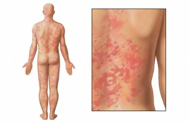 Quando transpira, aparecem manchas na pele? Pode ser urticária!